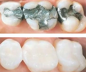 White fillings composite fillings st louis why did you get one cavities as their name implies are essentially holes in your teeth caused by decay you can sometimes spot a cavity solutioingenieria Gallery